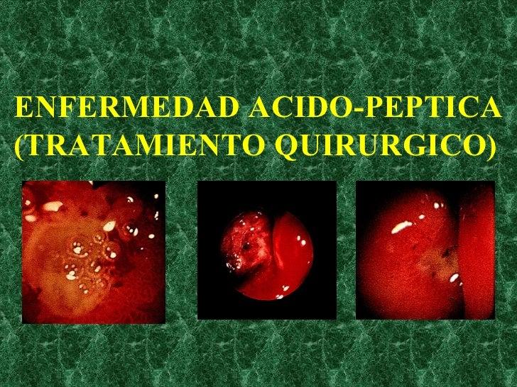 ENFERMEDAD ACIDO-PEPTICA (TRATAMIENTO QUIRURGICO)