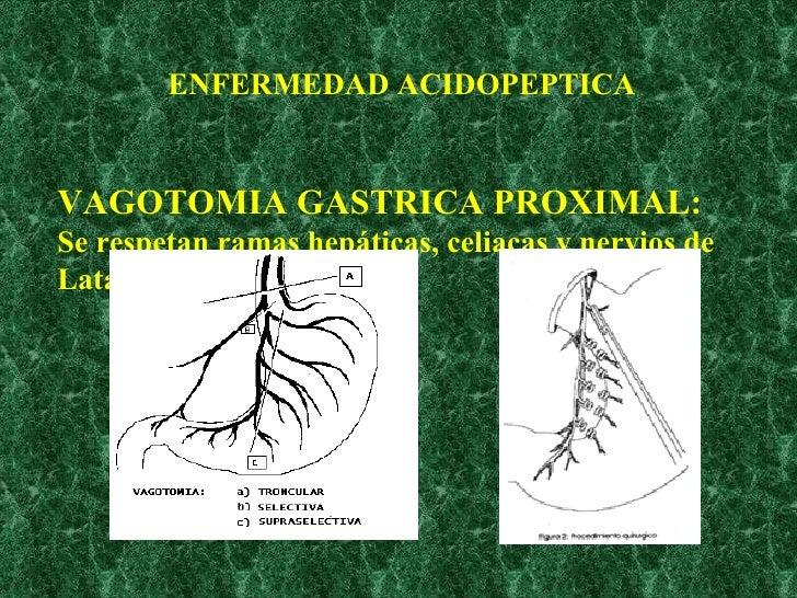 VAGOTOMIA GASTRICA PROXIMAL: Se respetan ramas hepáticas, celiacas y nervios de Latarjet ENFERMEDAD ACIDOPEPTICA