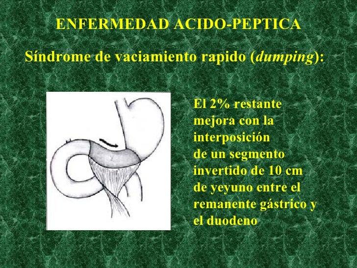 ENFERMEDAD ACIDO-PEPTICA <ul><li>Síndrome de vaciamiento rapido ( dumping ): </li></ul>El 2% restante mejora con la interp...