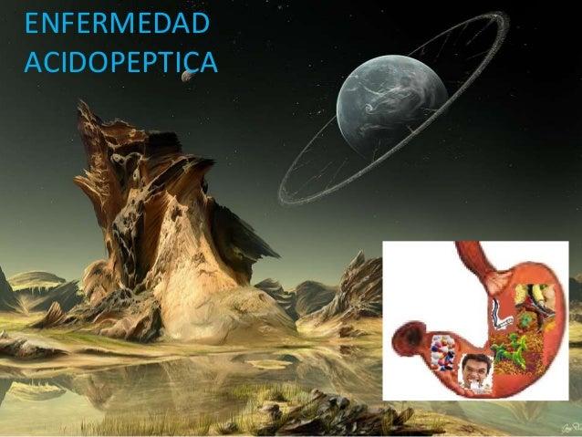 ENFERMEDADACIDOPEPTICA