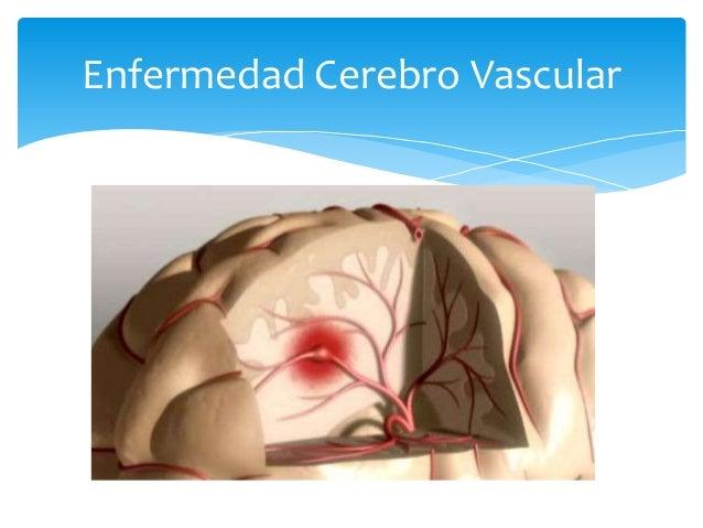 Enfermedad cardiovascular en la diabetes mellitus