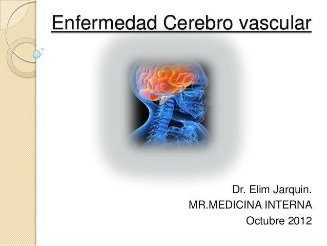 Enfermedad Cerebro vascular                    Dr. Elim Jarquin.              MR.MEDICINA INTERNA                       Oc...