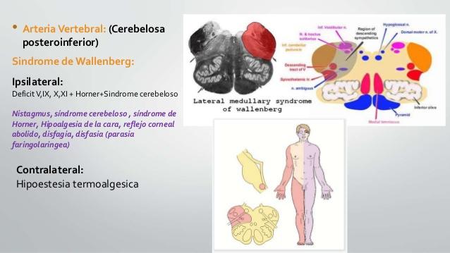 Berühmt Enfermedad cerebrovascular 2 VK89