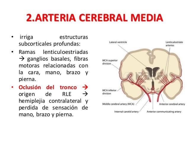 síntomas de oclusión de la arteria cerebelosa inferior posterior de diabetes
