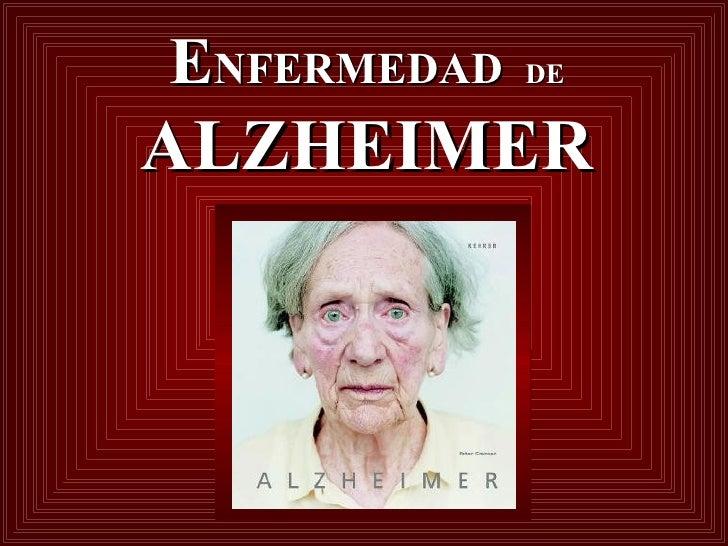 E NFERMEDAD  DE   ALZHEIMER
