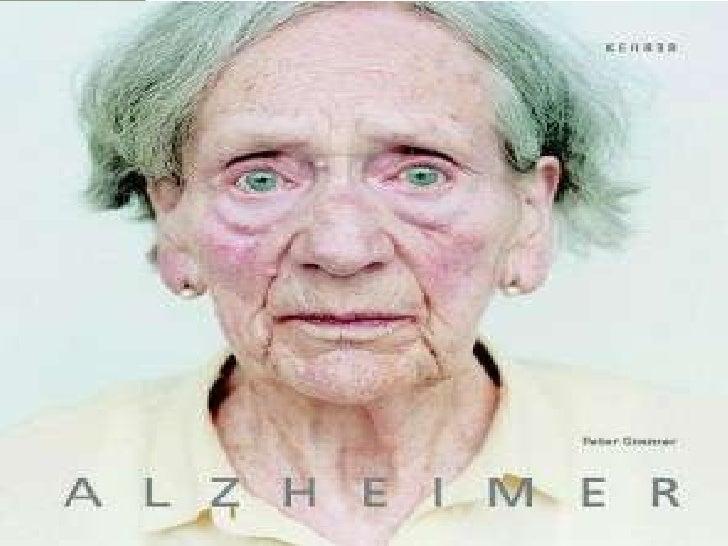 Síndrome crónico  Deterioro de las funciones  cognoscitivas (memoria)     Irreversible        Afecta exclusivamente al SNC...