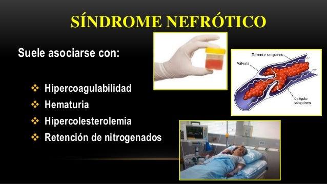 Suele asociarse con:  Hipercoagulabilidad  Hematuria  Hipercolesterolemia  Retención de nitrogenados SÍNDROME NEFRÓTICO