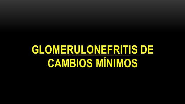 """ Se conoce también como """"nefrosis lipoidea"""" o """"síndrome nefrótico idiopático"""".  Causa + fcte en niños ( 2 a 6 años)  EC..."""