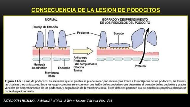 CARACTERÍSTICAS HISTOLÓGICAS DE ECM MICROSCOPIA OPTICA  GLOMERULOS  Aspecto normal: MBG es normal ; ligero incremento de...