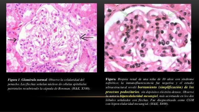 Figura. Los lóbulos aparecen resaltados en rojo; en glomérulos normales es dificil determinar con prescisión su límite. De...
