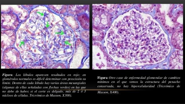 • Sin depósitos de inmunoglobulinas o complemento • La minoría tiene tinción débil para Ig M +/- C3. • Tinción para albumi...