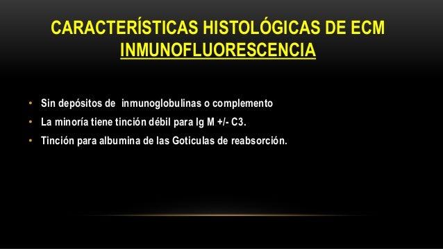 Izquierda: caso de ECM teñida para IgG. Se aprecia Poca o ninguna IgG en la ECM en forma de inmunocomplejos, si bien puede...
