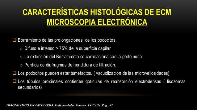 microscopia electrónica PATOLOGIA HUMANA. Robbins.9° edición . Riñón y Sistema Colector. Pág.. 536