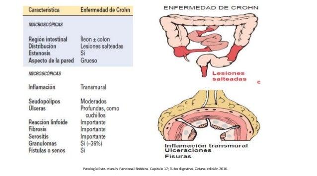 Patología Estructural y Funcional Robbins. Capitulo 17; Tubo digestivo. Octava edición.2010.