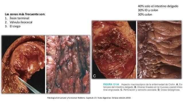 Patología Estructural y Funcional Robbins. Capitulo 17; Tubo digestivo. Octava edición.2010. Las zonas más frecuente son: ...