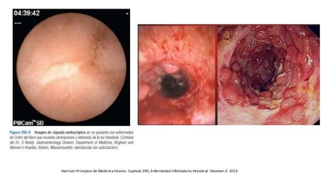 Harrison Principios de Medicina Interna. Capitulo 295; Enfermedad inflamatoria intestinal. Volumen 2. 2013.