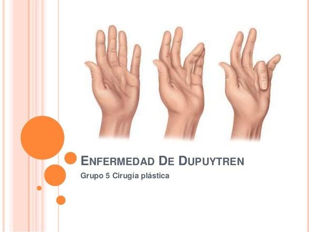 ENFERMEDAD DE DUPUYTREN Grupo 5 Cirugía plástica