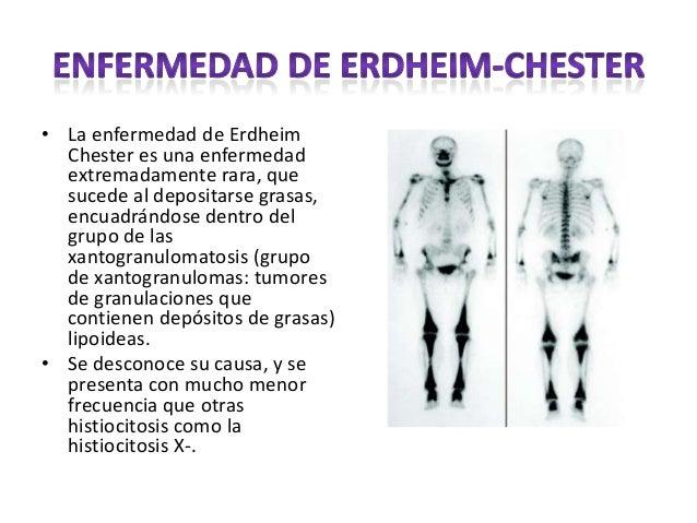 • La enfermedad de Erdheim Chester es una enfermedad extremadamente rara, que sucede al depositarse grasas, encuadrándose ...