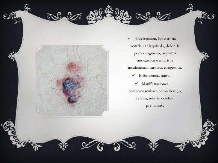 <ul><li>Hipertensión, hipertrofia ventricular izquierda, dolor de pecho anginoso, isquemia miocárdica o infarto e insufici...