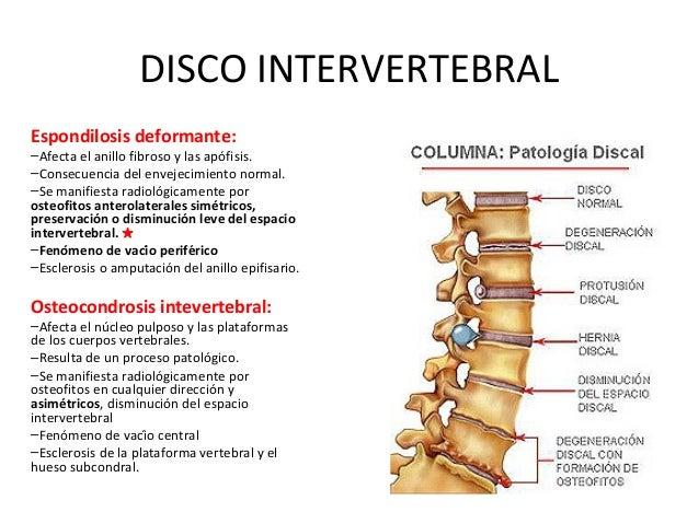 Que deforma spondiloartroz sheynogo del departamento de la columna vertebral