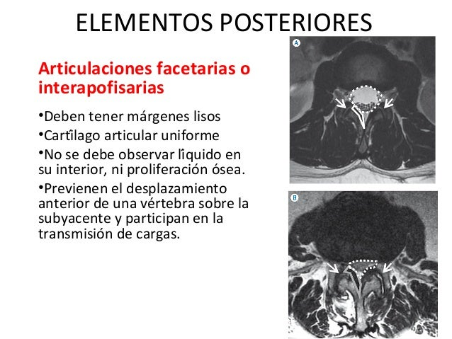 Enfermedad degenerativa en columna lumbar