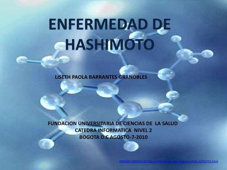 ENFERMEDAD DE HASHIMOTO<br />LISETH PAOLA BARRANTES GRANOBLES <br />FUNDACION UNIVERSITARIA DE CIENCIAS DE  LA SALUD <br /...