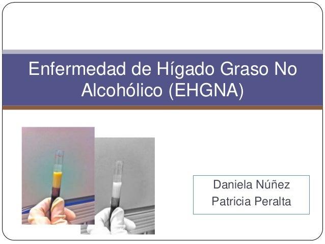 Enfermedad de Hígado Graso No Alcohólico (EHGNA)  Daniela Núñez Patricia Peralta