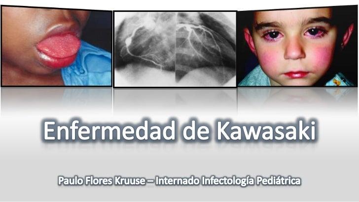 Prieto Tato, L., M. Cuesta Rubio, et al. (2010). Enfermedad de Kawasaki: diagnóstico y tratamiento, Elsevier.