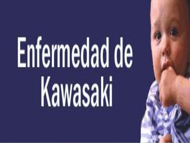 Enfermedad de Kawasaki Alumnas: Guzmán García diana Celina Castro Valenzuela Citlali Arvizu Villegas Karla Valeria