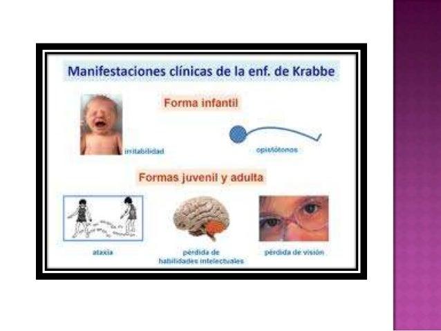  No existe una cura. Niños han recibido trasplantes de célulassanguíneas del cordón umbilical y hanmejorado los síntomas...
