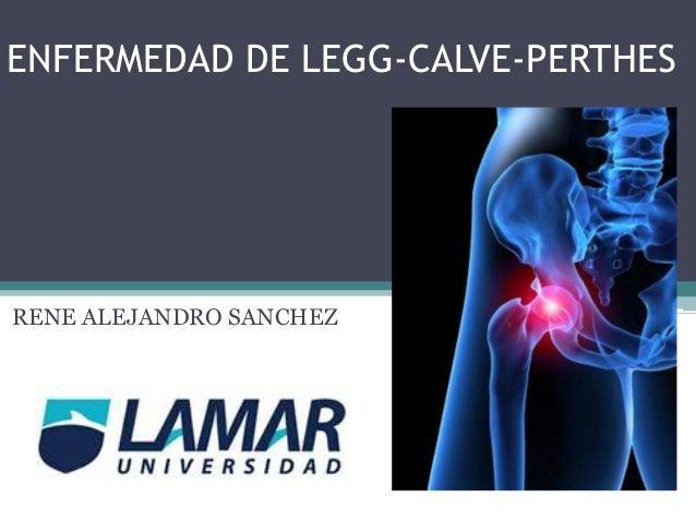 ENFERMEDAD DE LEGG-CALVE-PERTHES  RENE ALEJANDRO SANCHEZ