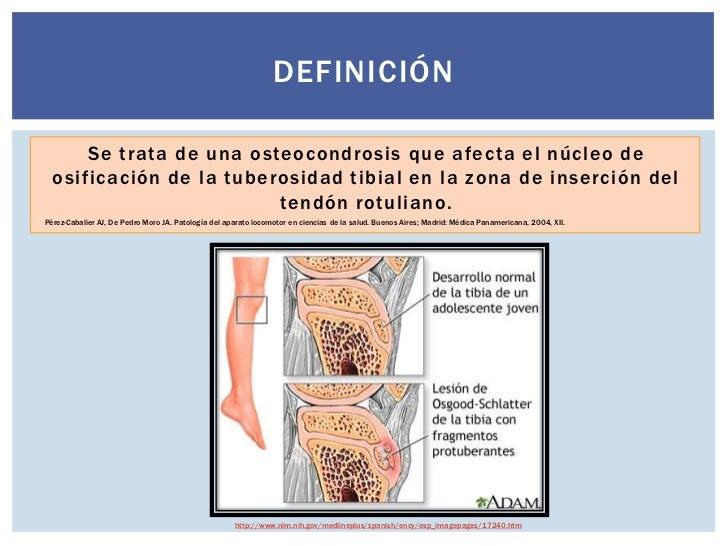 Los dolores al tórax sobre la espalda el escalofrío