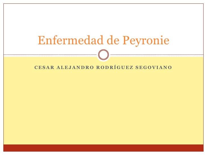 Enfermedad de PeyronieCESAR ALEJANDRO RODRÍGUEZ SEGOVIANO