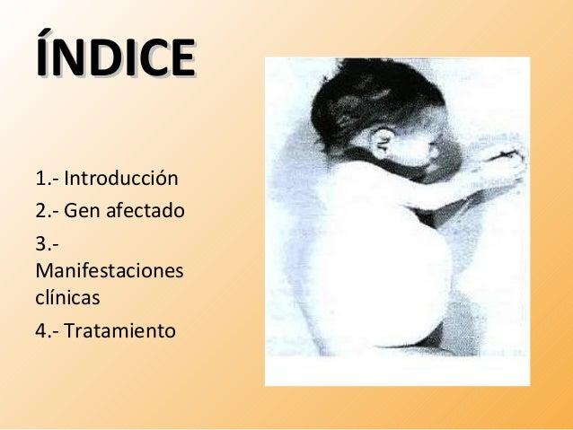 ÍÍNNDDIICCEE  1.- Introducción  2.- Gen afectado  3.-  Manifestaciones  clínicas  4.- Tratamiento