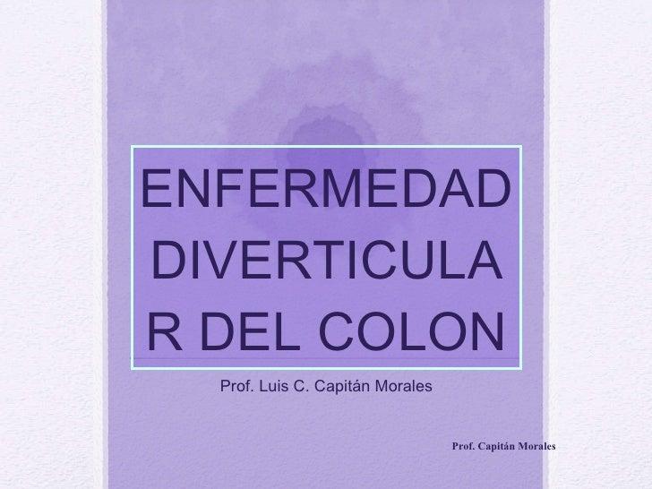 ENFERMEDAD DIVERTICULAR DEL COLON Prof. Luis C. Capitán Morales Prof. Capitán Morales