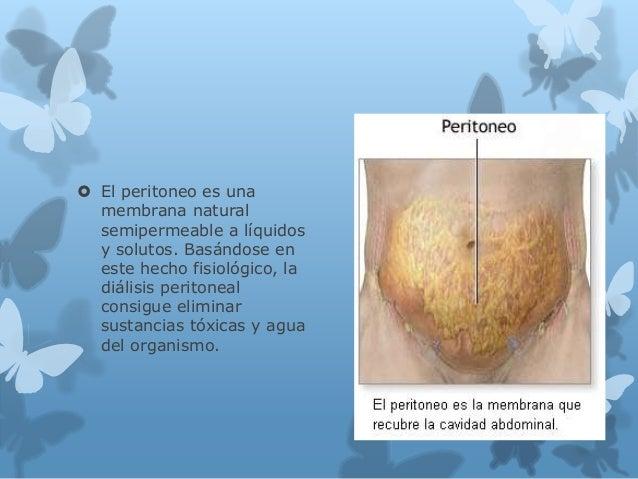 El peritoneo es una membrana natural semipermeable a líquidos y solutos. Basándose en este hecho fisiológico, la diálisi...
