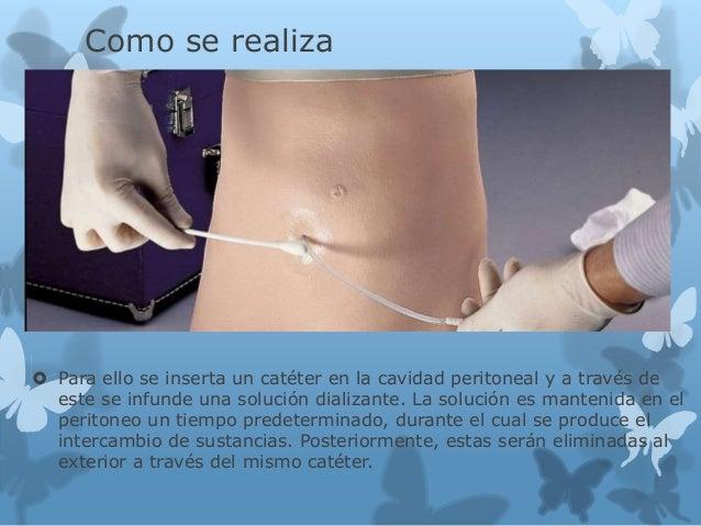 Como se realiza  Para ello se inserta un catéter en la cavidad peritoneal y a través de este se infunde una solución dial...