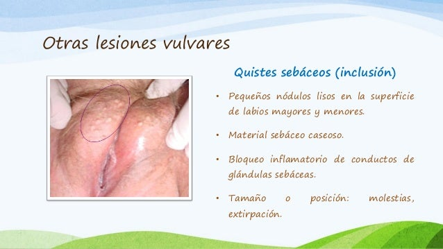 Atopichesky la dermatitis el dolor