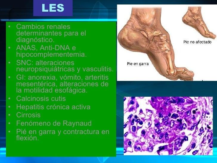 Perfecto Enfermedades De Las Uñas Y Enfermedades De Imágenes Fotos ...