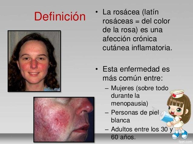 Curar atopichesky la dermatitis a los niños sobre la persona