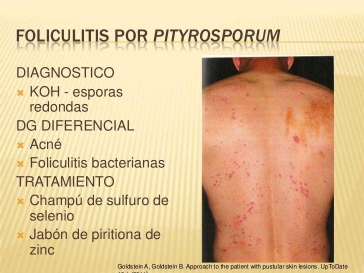 Enfermedades cutáneas producidas por hongos1.pps