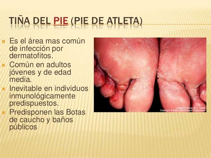 El tratamiento del hongo de las uñas por una aplicación