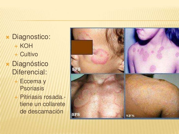 La psoriasis de los rincones de los labios