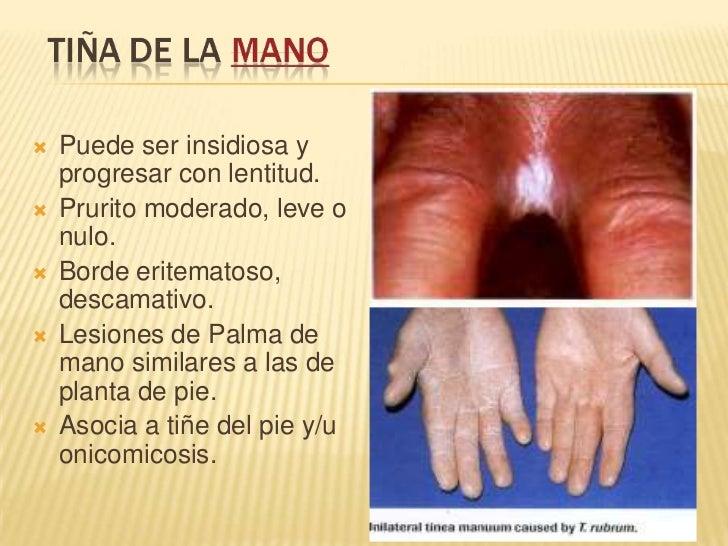El hongo las uñas que curar