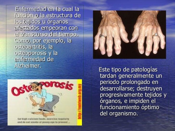 Enfermedades Degenerativa F Slide 2
