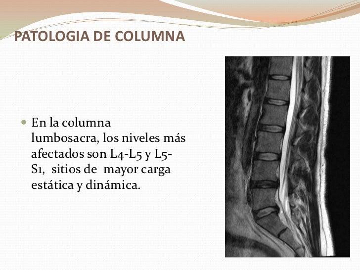 La osteocondrosis del cuello y el dolor en la clavícula