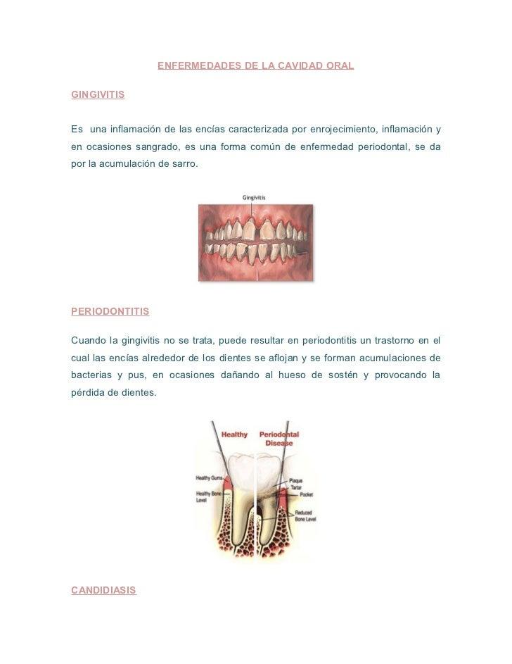 ENFERMEDADES DE LA CAVIDAD ORALGINGIVITISEs una inflamación de las encías caracterizada por enrojecimiento, inflamación ye...