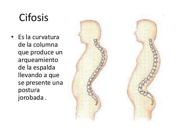 Los dolores con la espalda el tratamiento