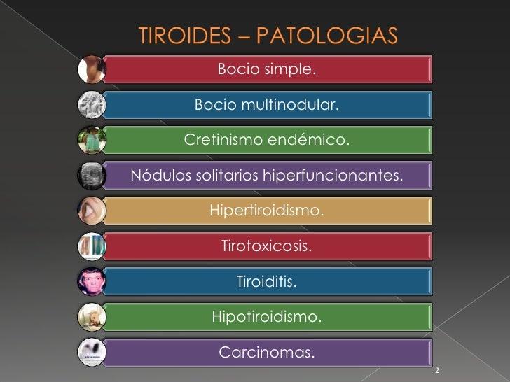 El protopico ha ayudado a la psoriasis