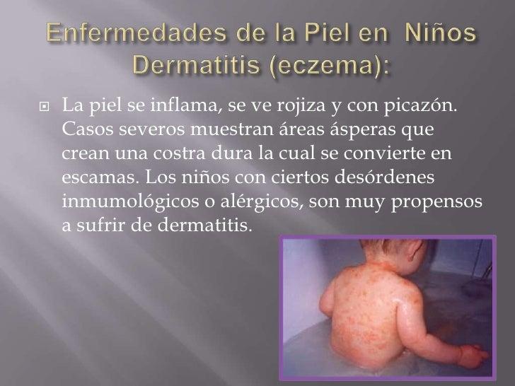 Enfermedades de la Piel en  Niños Dermatitis (eczema): <br />La piel se inflama, se ve rojiza y con picazón. Casos severo...